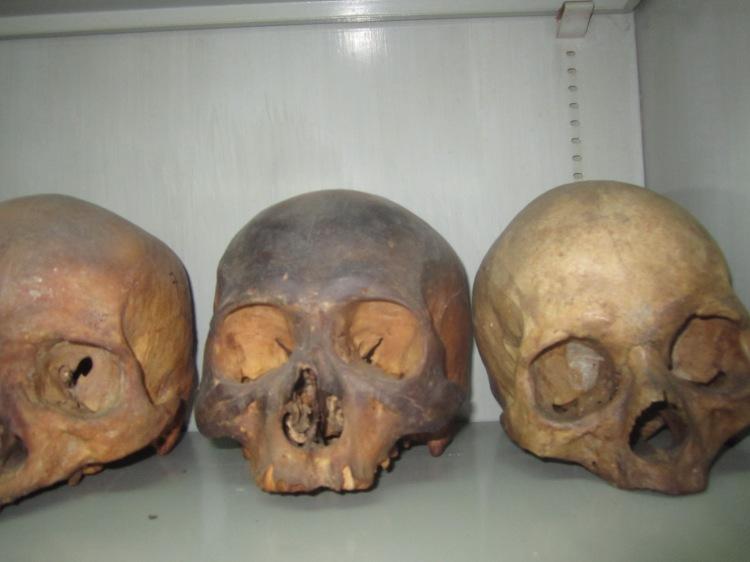 Một số hộp sọ người tại bộ môn Giải phẫu học, trường Đại học Y Dược TP.HCM. Ảnh: Phanxipăng