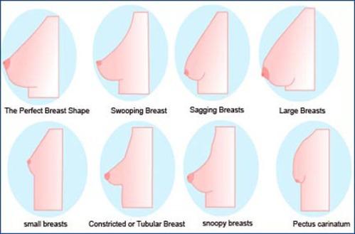 8 kiểu vú